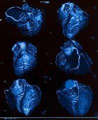 3D Coronary Arteries